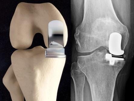 a térd artrózisának gonarthrosisának kezelése az egyik bokaízület duzzanata fájdalom nélkül