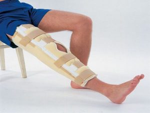 a térd deformáló artrózisának patogenezise ízületi gyulladás a lábánál, a nagy lábujj közelében
