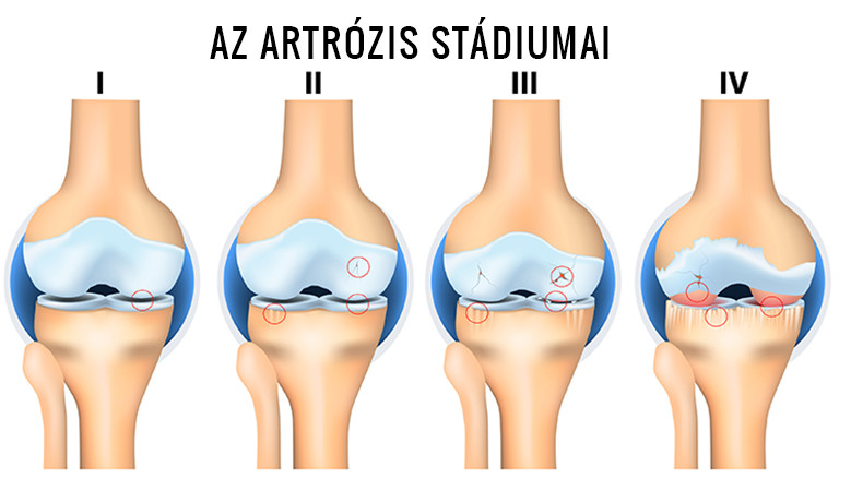 a térd stádium artrózisa 1 csontok és ízületek degeneratív betegségei