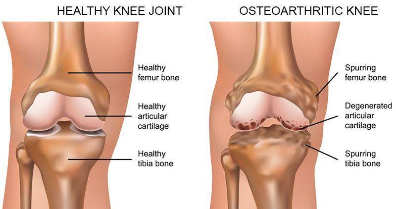a térd artrózisának kezelési módszerei
