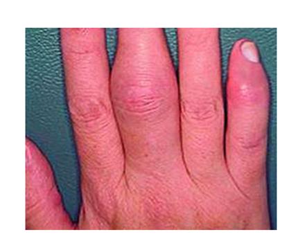 hogyan lehet kezelni az ujjak ízületeinek gyulladását boka sérülés gyors kezelés