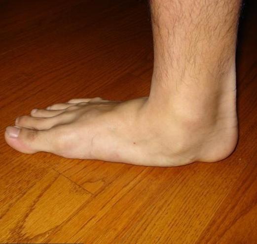ízületi és lábbetegségek tünetei