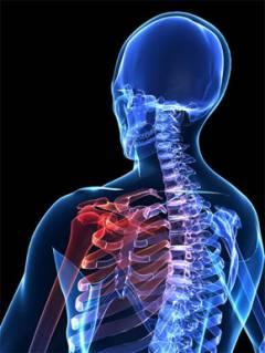 miért a vállízület artrózisával