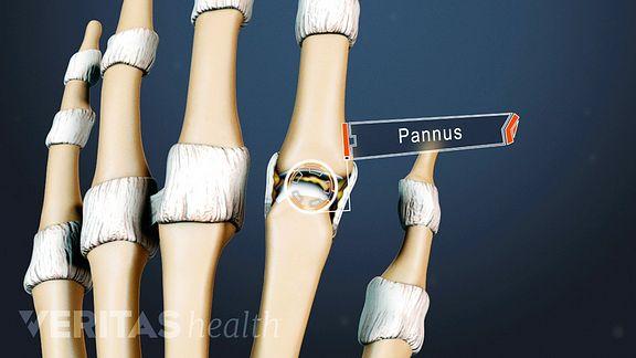 az ujjak rheumatoid arthritis első tünetei okozzák a vállízület ízületi gyulladása kezelési tünetek