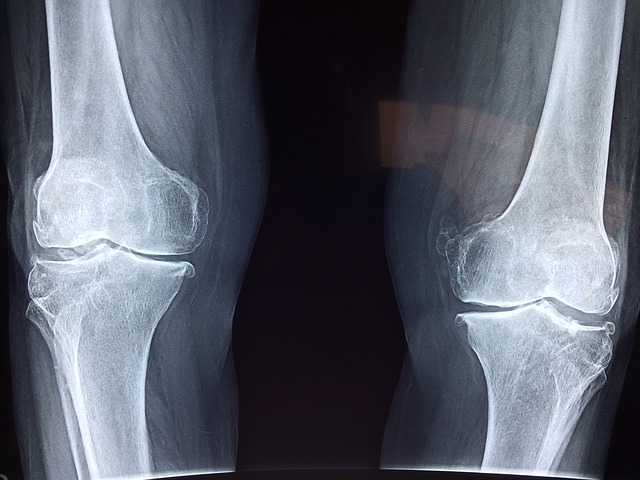 artrózis kezelő kerékpár ízületi fájdalmak a lábakban