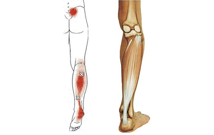 az artrózis 2. stádiumának kezelése javító kenőcs