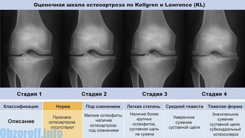 az artrózis 2. stádiumának kezelése mit kell viselni a térd artrózisával
