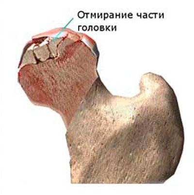 az izületi zsák gyulladása a csípőízületben