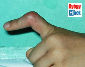 az ujj ízülete sérülés esetén fáj kenőcsök lábízületek duzzanatához