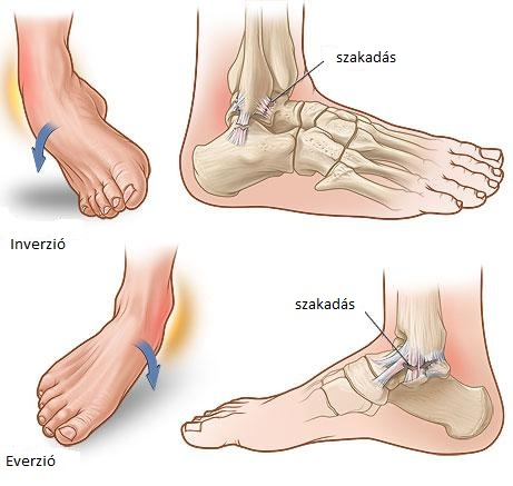 a bokaízület fájdalmának okai