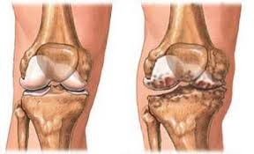 a térd artrózisának gonarthrosisának kezelése ízületi fájdalom kórokozók
