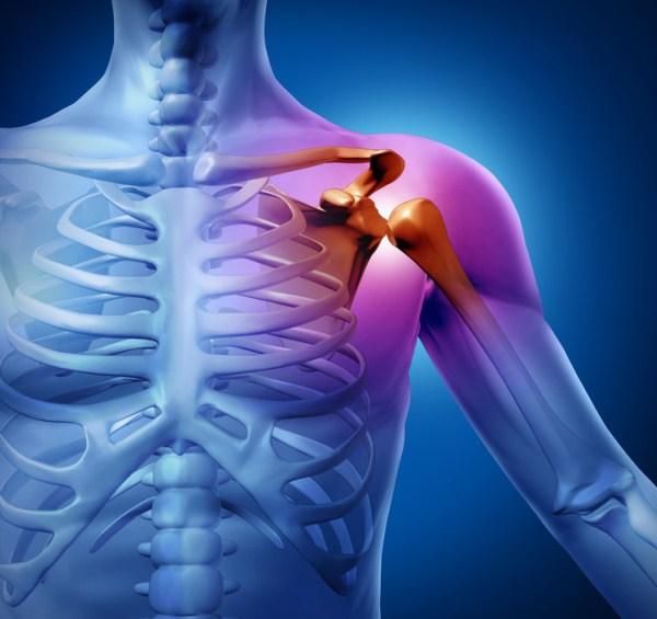 váll fájdalom a bal oldalon hajtások és fájdalom a csípőízületben