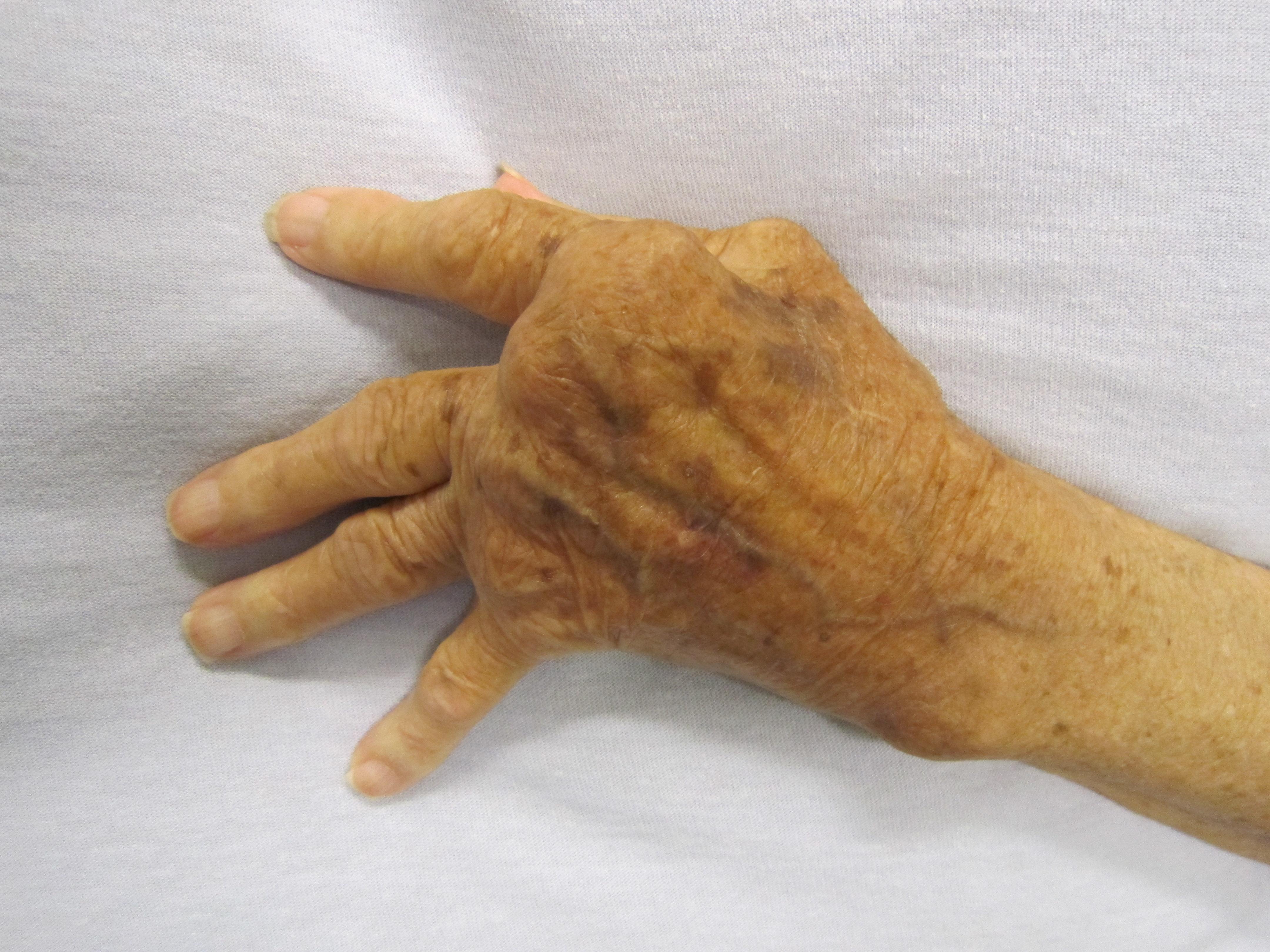 a fájdalom tünetei a lábak ízületeiben összeroppant az ízületben fájdalom nélkül