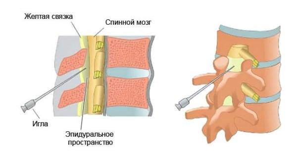 készítmények az osteochondrosis súlyosbodására ízületi és gerincfájdalom