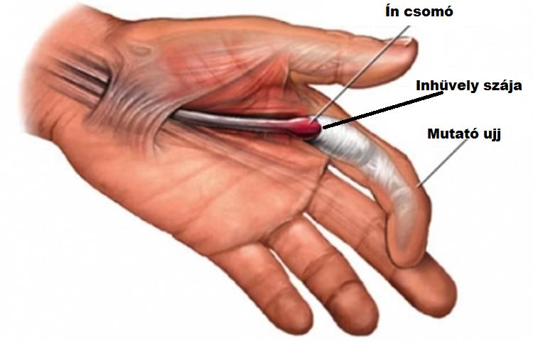 hogyan kell kezelni a pattanó ízületeket a láb ízületi károsodása