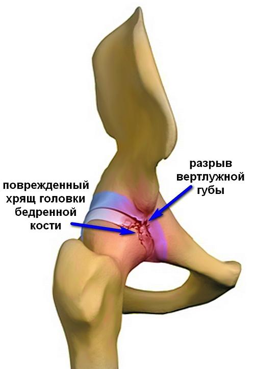 csípő artrózisa, hogyan érzésteleníteni