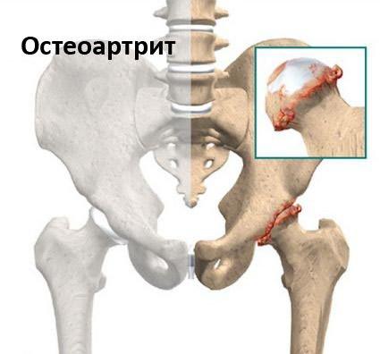 ízületi fájdalom shymkent a lábak duzzanata ízületi betegséggel