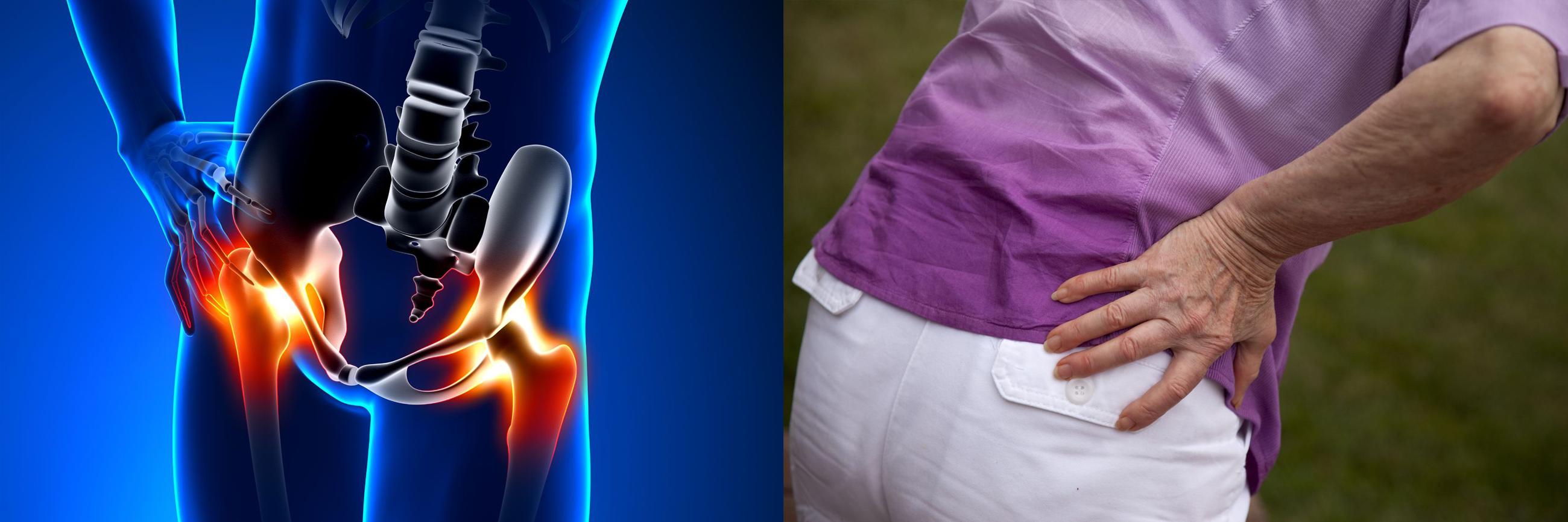csípőízületek fáj, hogyan kell kezelni ok nélküli ízületi fájdalom