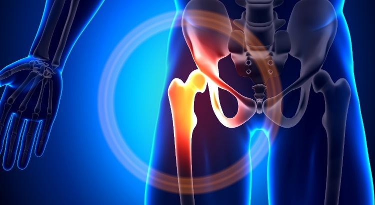 térdízület csípőfájdalma együttes kezelés kvarcmal