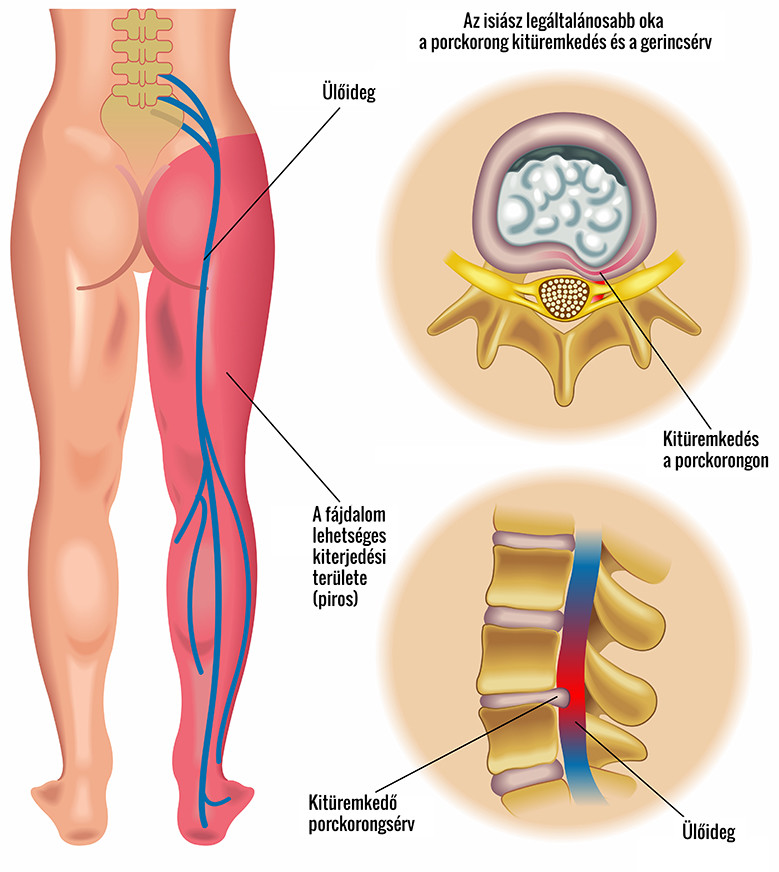 amikor a séta fáj a csípőízület kezelését