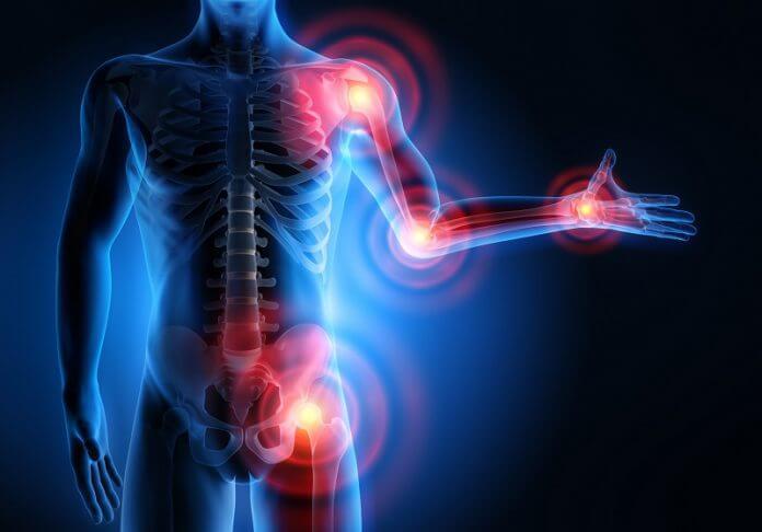 az ízületi fájdalom súlyosbodott nyirokcsomók ízületi fájdalmak