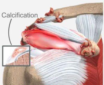 iliosakrális ízületi ízületi kezelés