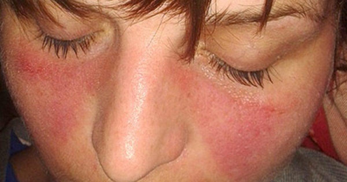 kötőszöveti gyulladás diagnosztizálása gyógyszerek súlyos csípőfájdalmakhoz
