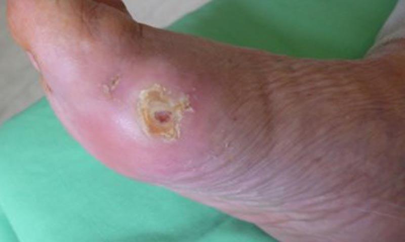 ízületi fájdalom és görcsök ujj izületi gyulladás tünetei
