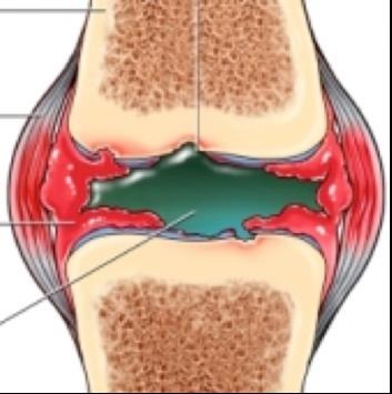 rheumatoid arthritis ízületek áttekintése