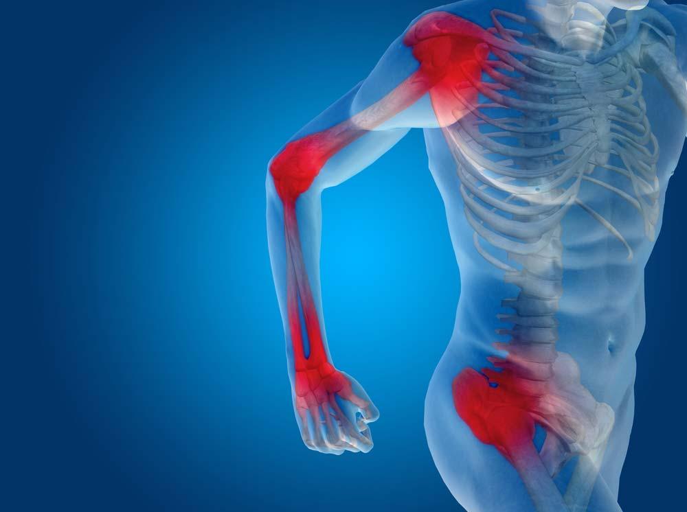 gyógyszerek az ízületi fájdalom gyulladásának enyhítésére csontritkulásos kenőcsök kezelésre