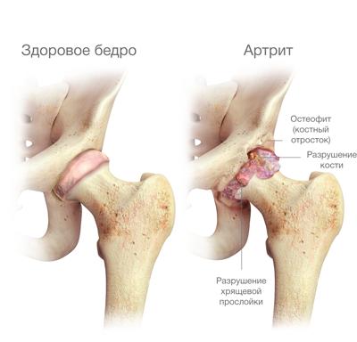 fájdalom a csípőízületben egy hajlított lábakkal
