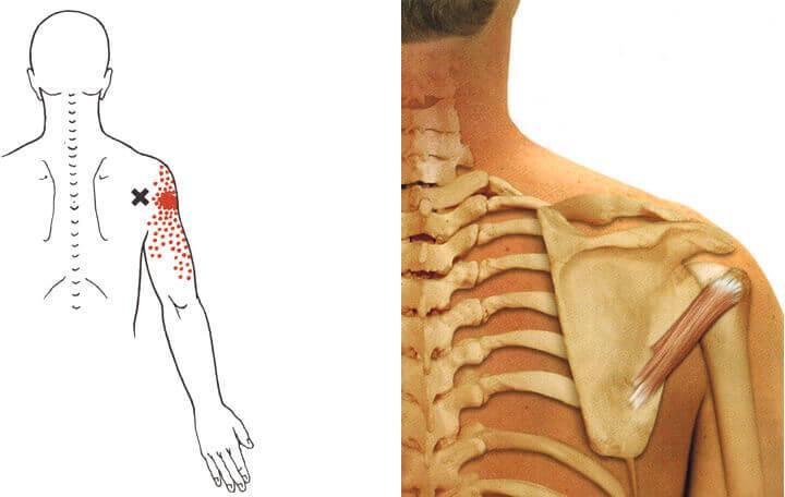 a kar és az ízületek fájdalma okoz újdonságok a térd ízületi gyulladás kezelésében