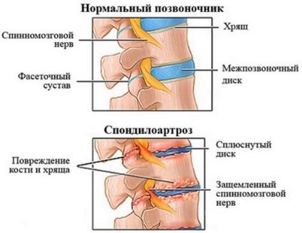 gyógyszereket vásárolni az artrózishoz a boka ízületének deformáló artrózisa 2 fokos kezelés
