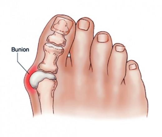 a vállízület kő bursitisz kezelése