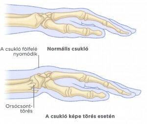 clavicularis arthritis