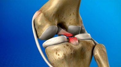 ödéma artrózisos kezeléssel