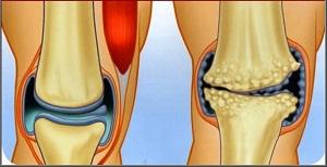 az artritisz fáj a kezemre miért fáj az ízületek reggel kezelni