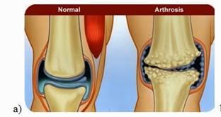 hogyan lehet helyreállítani a porcot térdízület artrózisával