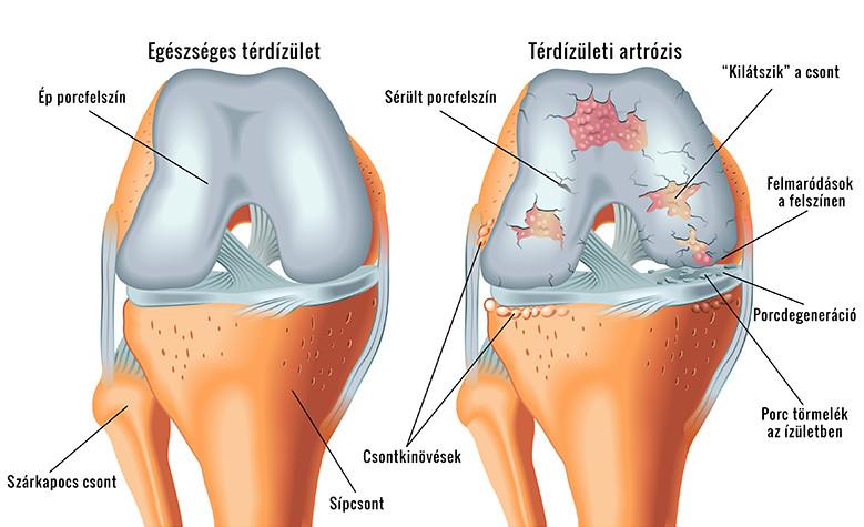 a térdízület duzzanata a háton térdgyulladást okoz