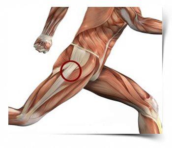 izom- és ízületi fájdalom a csípőízületben amely segít a csípőízület fájdalmában