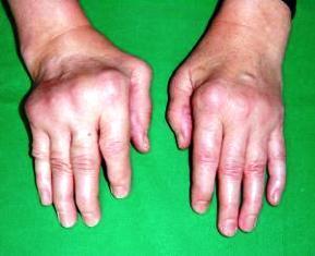 izületi izületi gyulladás mit szúrhatunk izületi fájdalommal