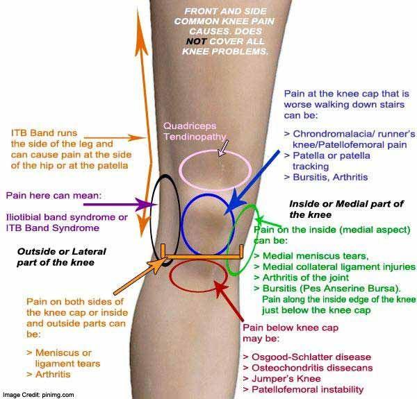 liba bursitis térdízület kezelése)