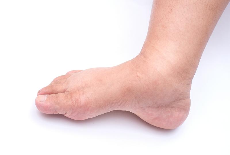 liba-láb szindróma kezelése