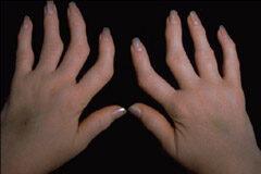 mi kezeli a rheumatoid arthrosisot fájdalom a vállban