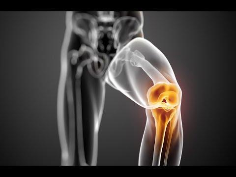 posztraumás artritisz térdkezelés