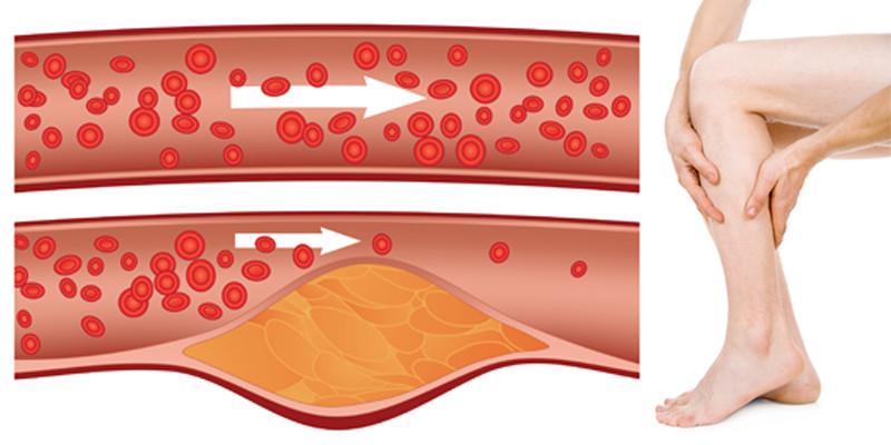 értágító gyógyszerek az artrózis kezelésében a térdízület fórumának 1. fokú artrózisának kezelése