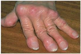 sokízületi fájdalom fájdalom a bal kéz könyökízületében, mit kell tenni