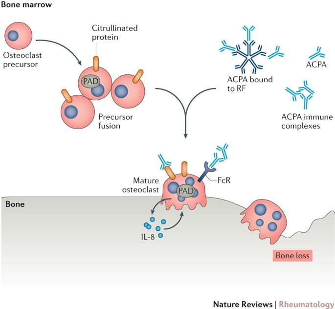 systemic autoimmune rheumatoid arthritis