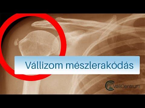 az artrózisos ízületek kezelése lágyéktáji fájdalom