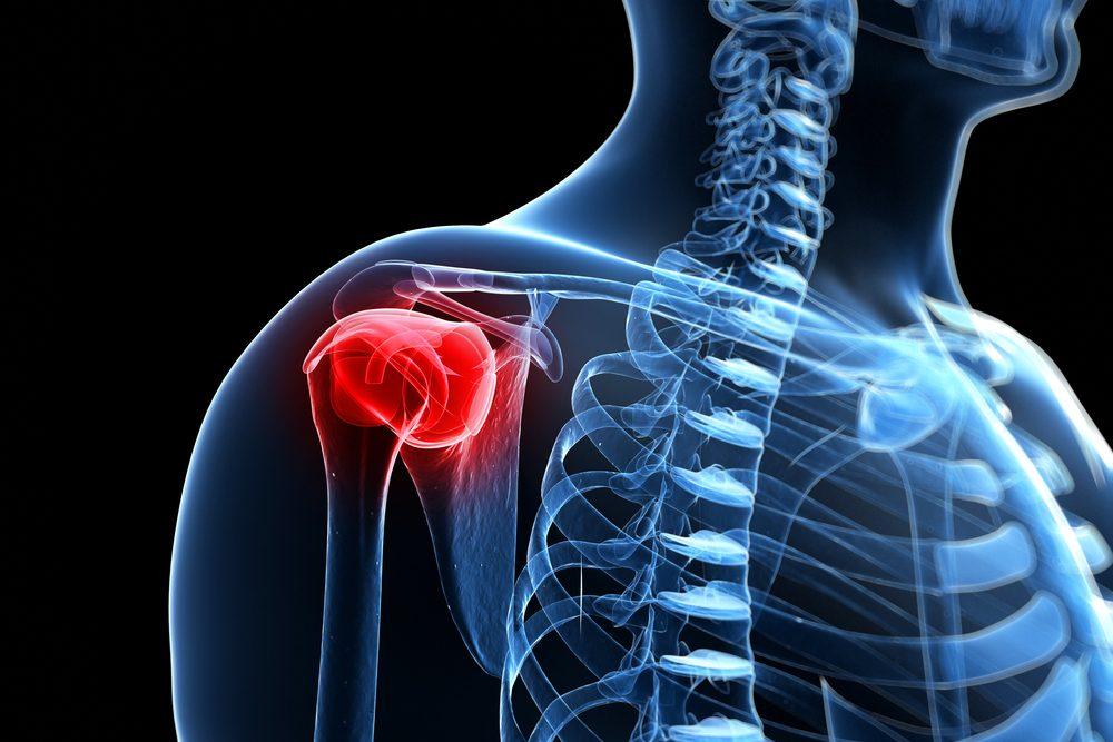 váll fájdalom a bal oldalon csontok és ízületek zárt és nyitott sérülései